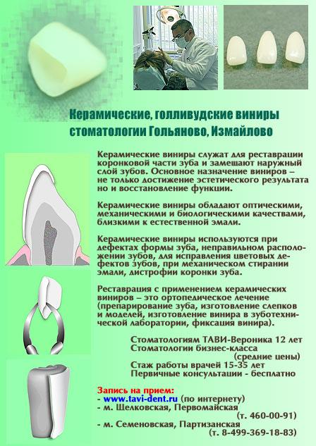 Ceramicheskie_viniry_Collage_Web_d2a288e8f099b