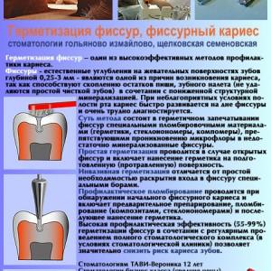 Герметизация фиссур в стоматологии