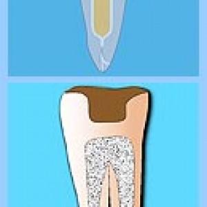 Микропротезирование в стоматологии