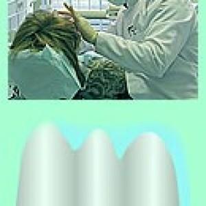 Несъемное протезирование