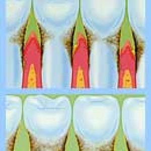 Пародонтологическая стоматология