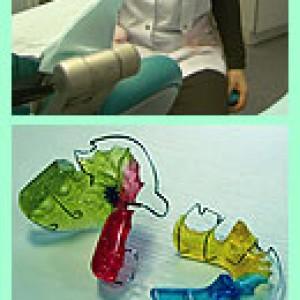 Установка зубных пластин