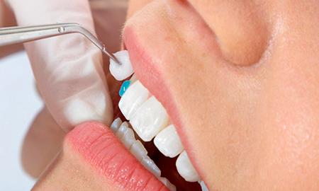 Винирование зубов
