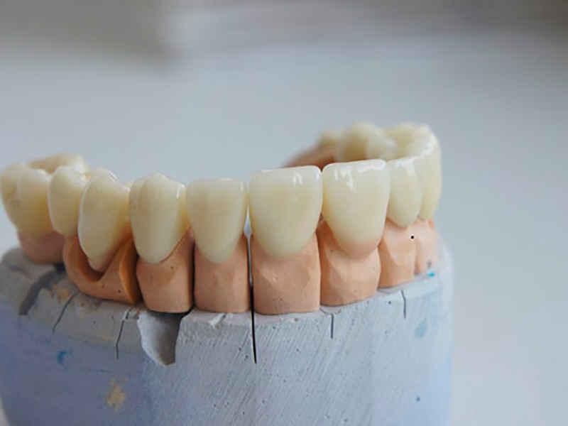 Установка коронок в стоматологии
