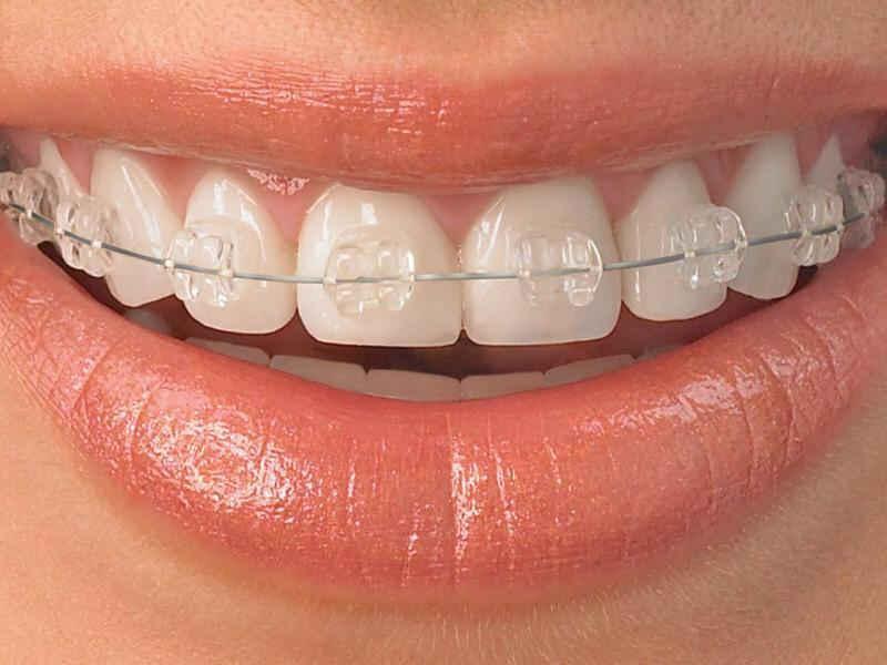 Керамические брекеты в стоматологии