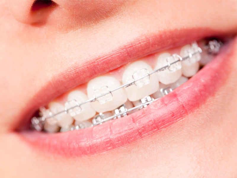 Сапфировые брекеты в стоматологии