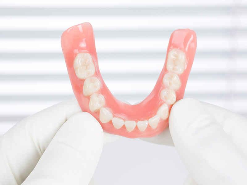 Несъемное протезирование в стоматологии