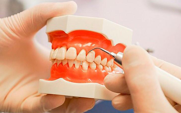 Лечение любых форм гингивита в стоматологии