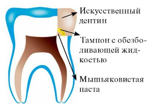 Обработка эмали зубов гелем «Флюокаль»