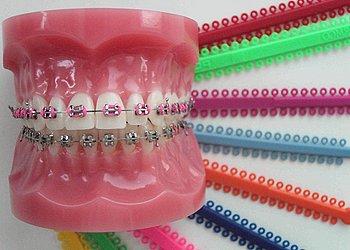 Установка брекетов взрослым в стоматологии