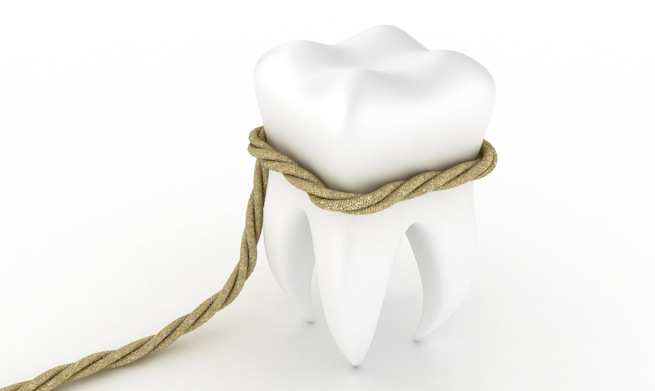 Процедура удаления зубов в клиниках «Тави» и «Вероника»