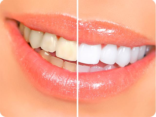 Как избавиться от налета курильщика на зубах