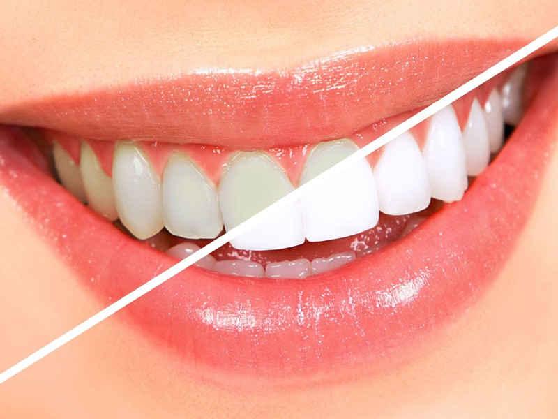 Отбеливание зубов методом Air-Flow