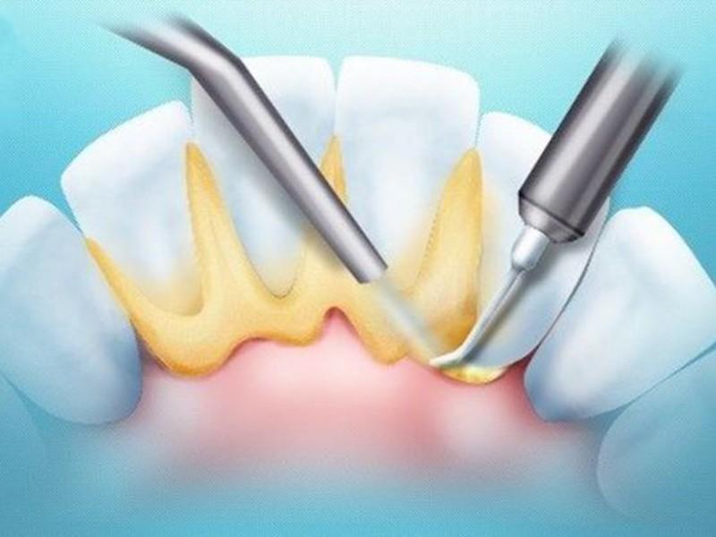 Ультразвуковое удаление зубного камня