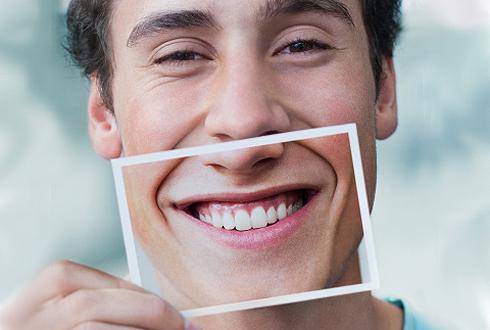 Фторирование зубов в стоматологии