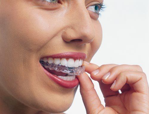 Стоматологические каппы для взрослых в клиниках «ТАВИ» и «Вероника»