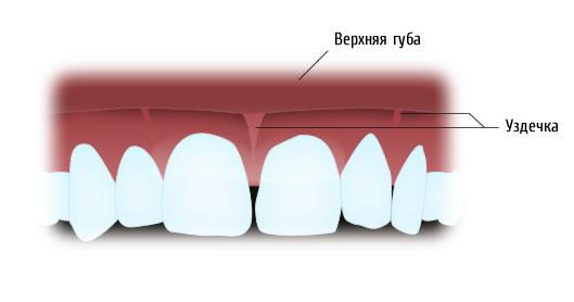 Важность пластики уздечки языка и губ у взрослых