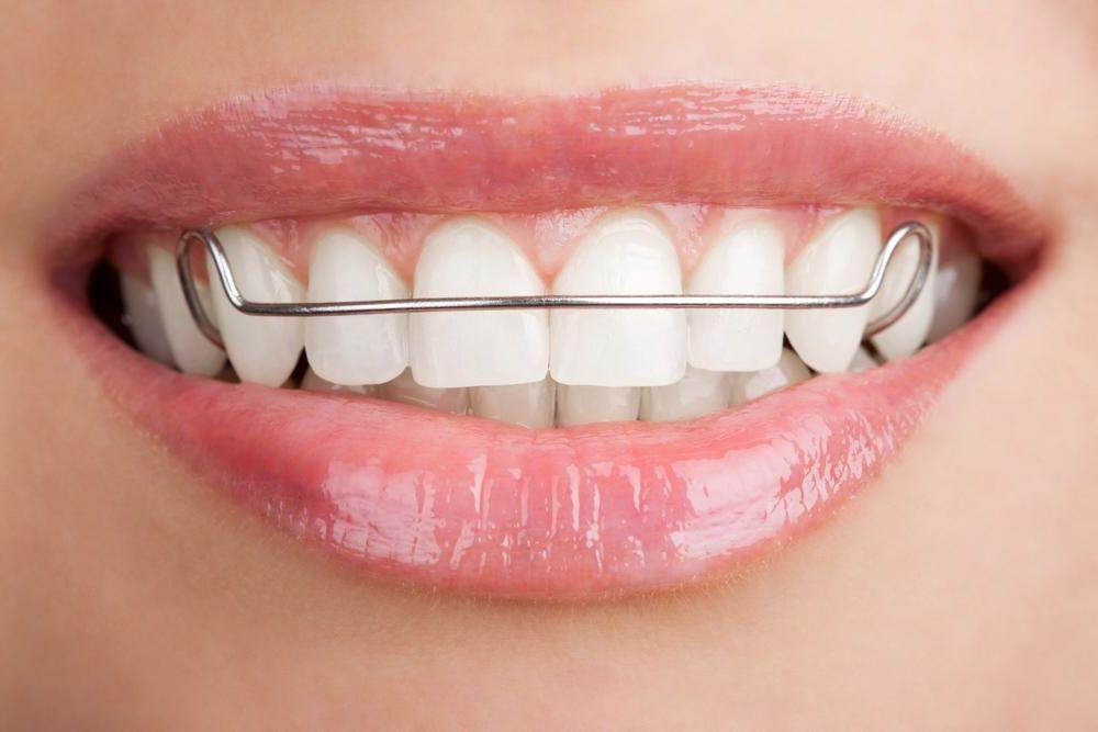 фото пластинка для зубов