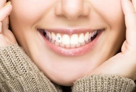 Установка зубных украшений в стоматологических клиниках «ТАВИ» и «Вероника»