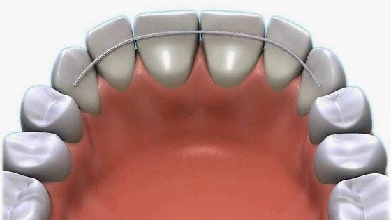 Установка ортодонтиеских ретейнеров